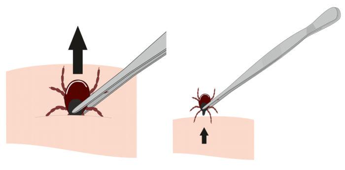 Illustration av korrekt borttagning av fästing med pincett.