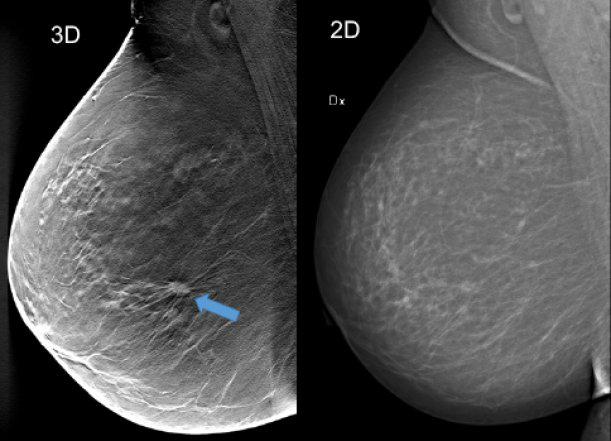Skillnad i kostnad for mammografi